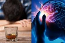 Người đàn ông 40 tuổi đã chảy máu não chỉ vì mê uống rượu